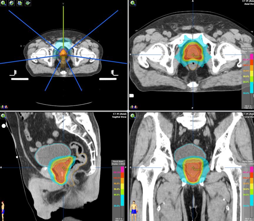 前立腺がん放射線治療